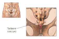 What is Coccydynia?