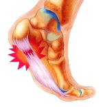 Painful Heels