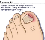 Foot Deformity | Ingrown Toenail