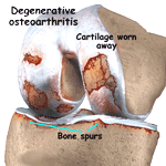 Osteoarthritis Knee - Degenerative Arthritis